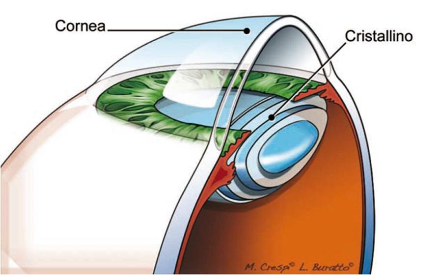 Cheratocono: cos'è - la cornea ed il cristallino